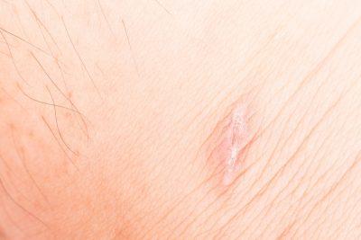 El agua de mar contribuye a la mejora de la cicatrización de la piel