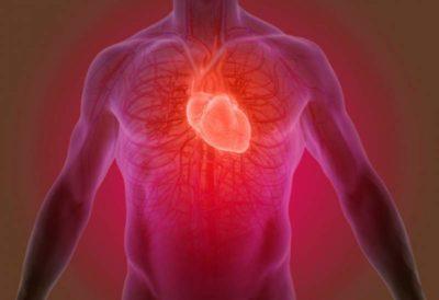 ateromatosis-aortica