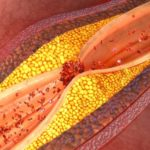 La lipidemia en la enfermedad arteroesclerótica