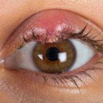 ¿Cuántos tipos de blefaritis existen y de qué dependen?