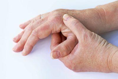 brote de artritis