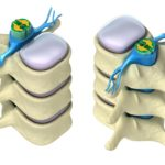 Células hematopoyéticas: origen de elementos formes