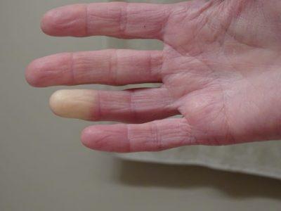 esclerodermia sistemica