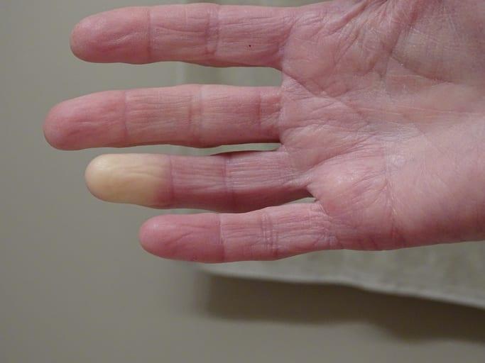 esclerodermia localizada crest