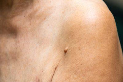fibroma cutaneo