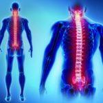 Qué es el hemangioma vertebral y qué lo causa