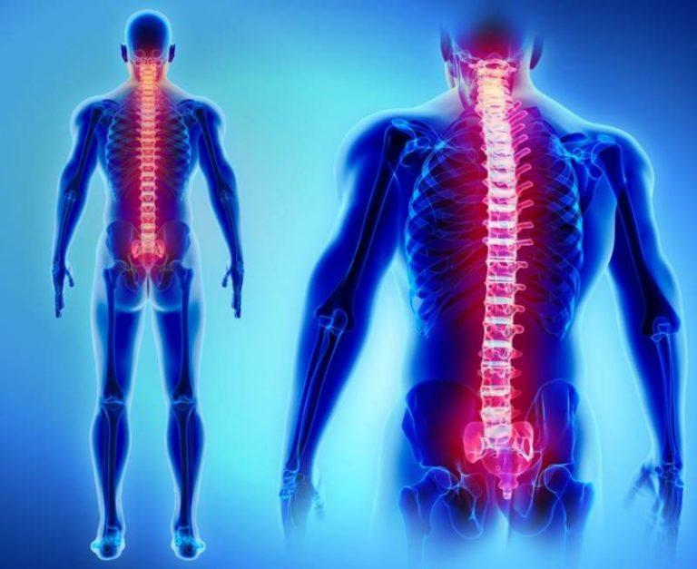 que es un hemangioma vertebral l3
