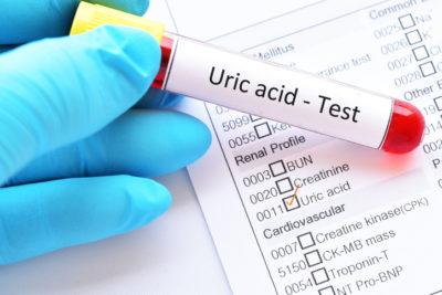 Hiperuricemia niveles de ácido úrico
