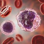 Monocitosis, descubre más sobre esta alteración y su tratamiento