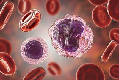 monocitosis