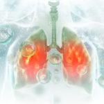 Qué es y cómo se diagnostica la neumonía nosocomial