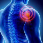 Osteocondropatía: alteraciones de la matriz