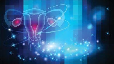 ovario poliquistico y embarazo