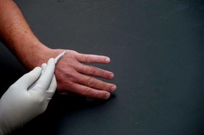 verruga o papiloma en la mano