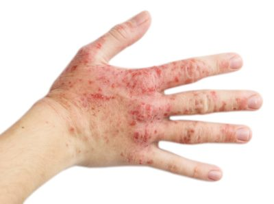 psoriasis ungueal