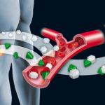 Causas, efectos y medidas recomendadas ante la resistencia a la insulina