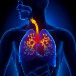 Bronquitis: tratamiento y medidas generales recomendadas