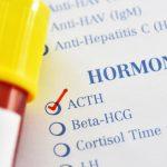 Niveles de cortisol bajo en plasma: causas y síntomas