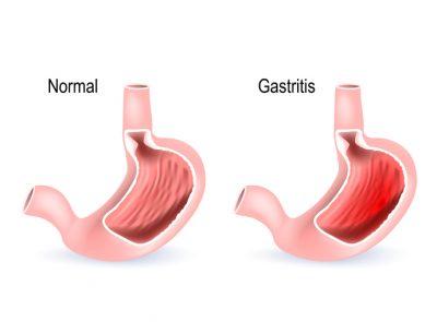 gastritis erosiva