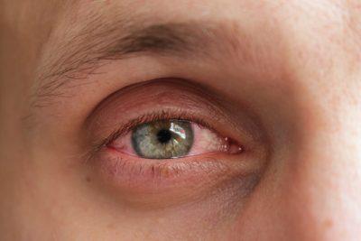 La conjuntivitis alérgica que es