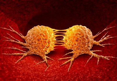 Metástasis pulmonar: tipos, síntomas, diagnóstico y tratamiento