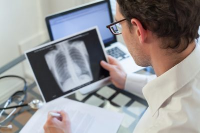 Neumonía atípica sintomas causas, diagnóstico tratamiento