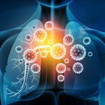 Bronconeumonía en niños y adultos: qué es, síntomas y tratamiento
