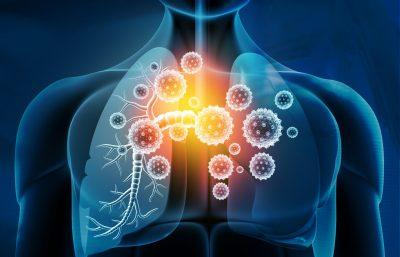 Bronconeumonía en adultos niños