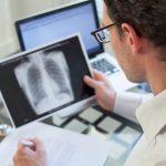 Neumonía intersticial: síntomas y diagnóstico