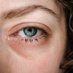 Ojo lloroso: todo lo que hay que saber para un correcto tratamiento